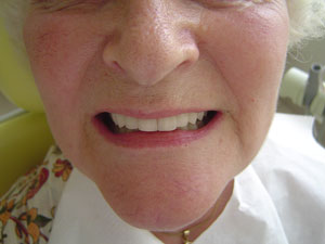 Soins dentaires a ANTALYA