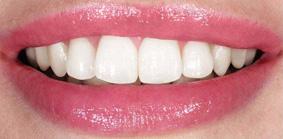 Décodage dentaire : découvrez le langage de vos dents