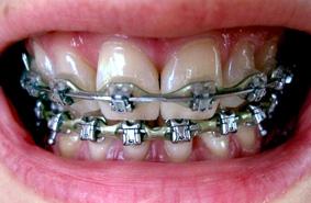 Orthodontie : pour une approche différente