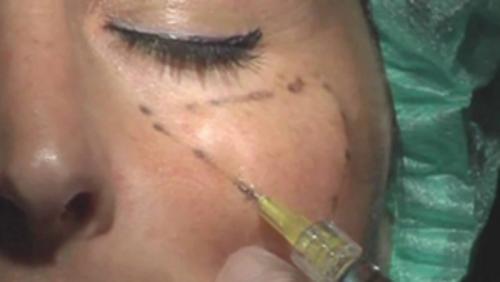Comment la chirurgie esthétique a progressé ?
