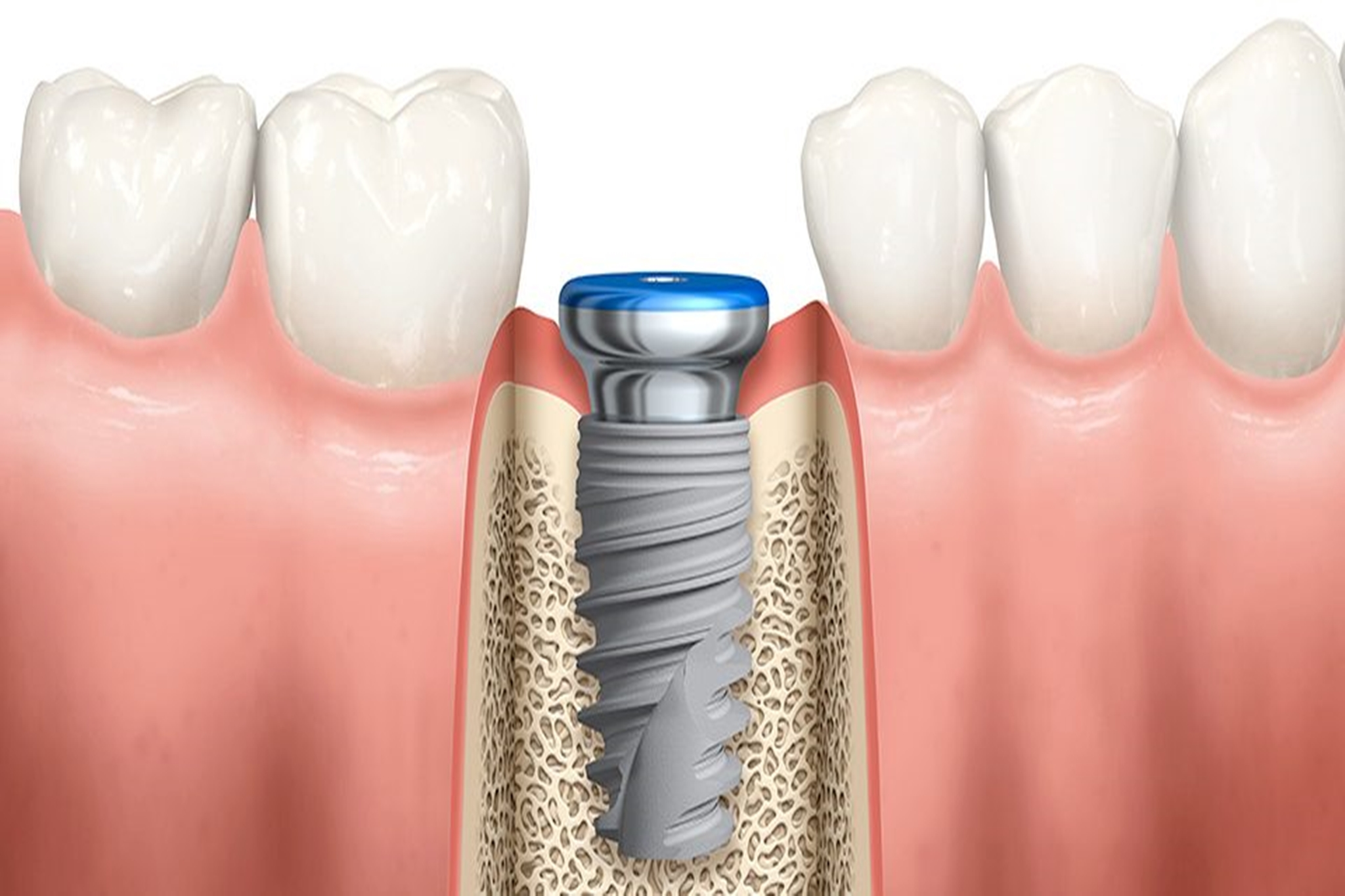 Besoin d'un implant dentaire? Voici nos conseils