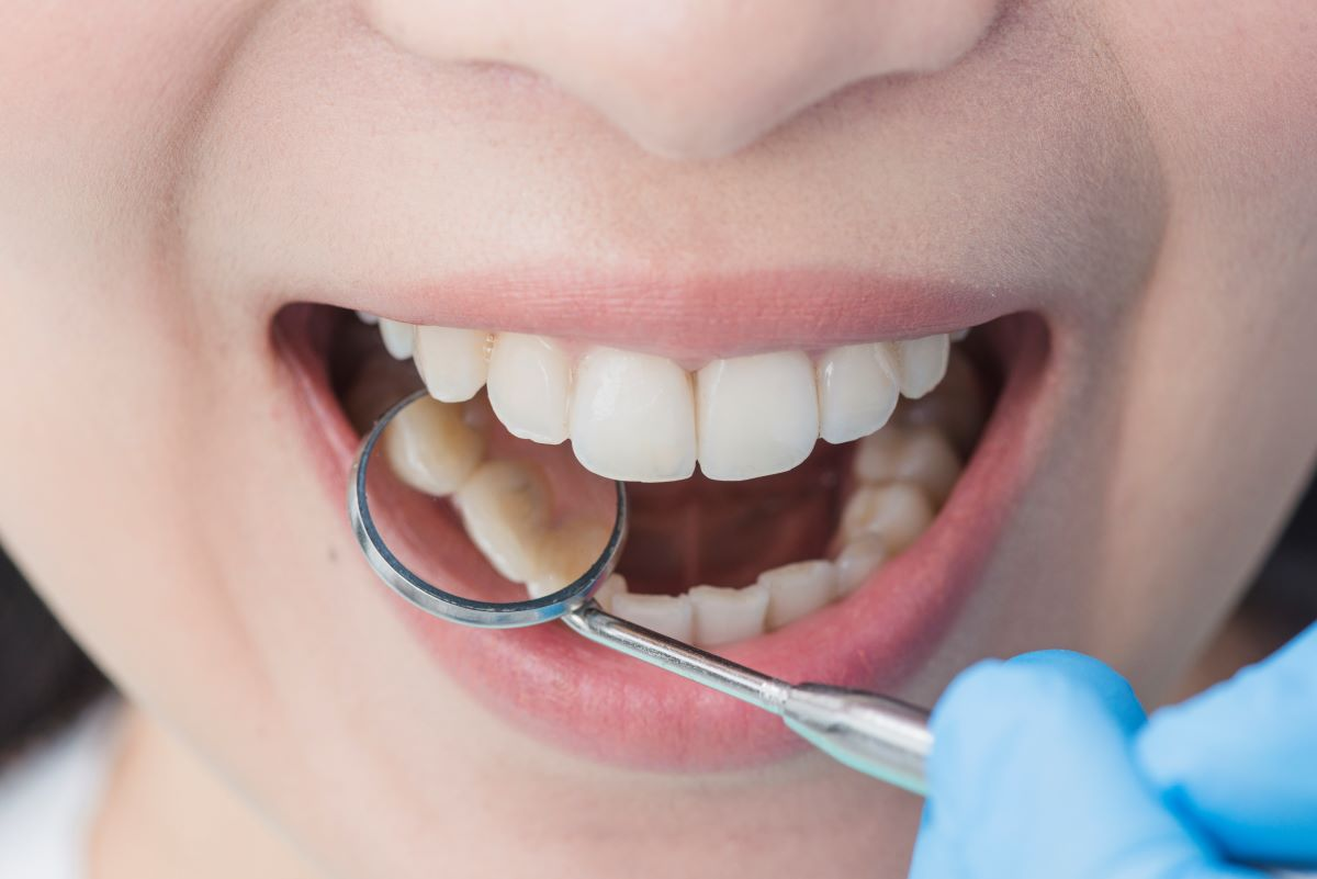 Les habitudes à adopter pour maintenir vos dents en parfait état