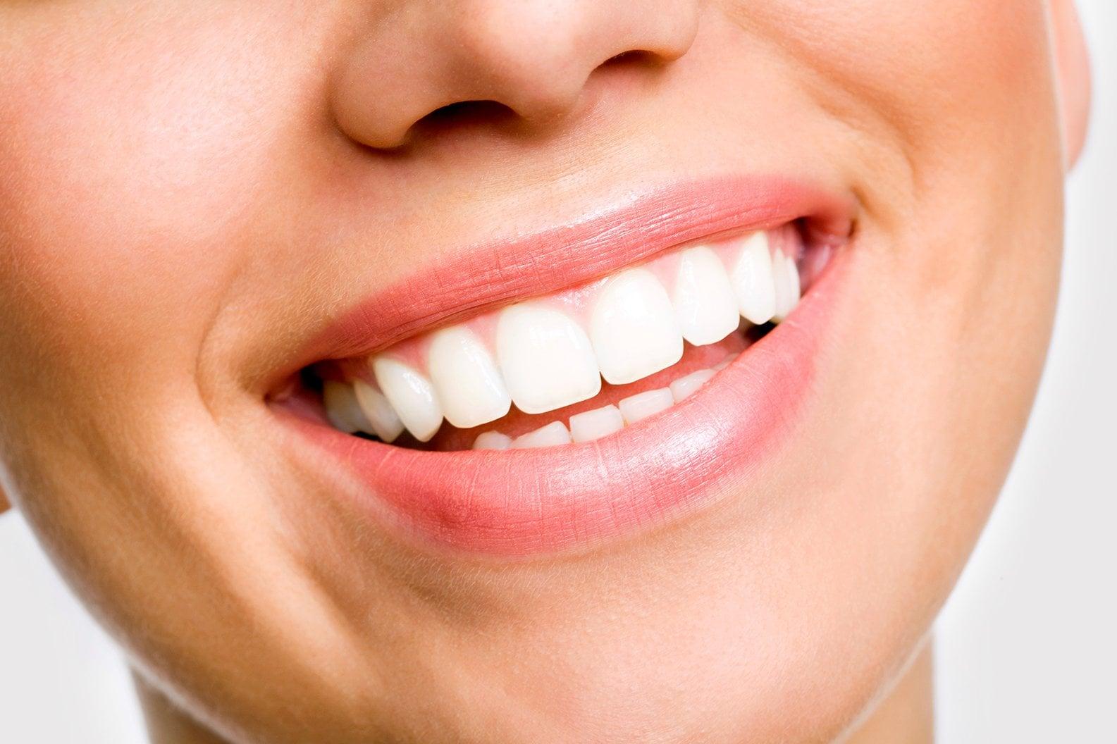 Comment refaire rapidement sa dentition ?