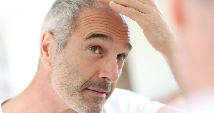 Comment faire face à une perte de cheveux