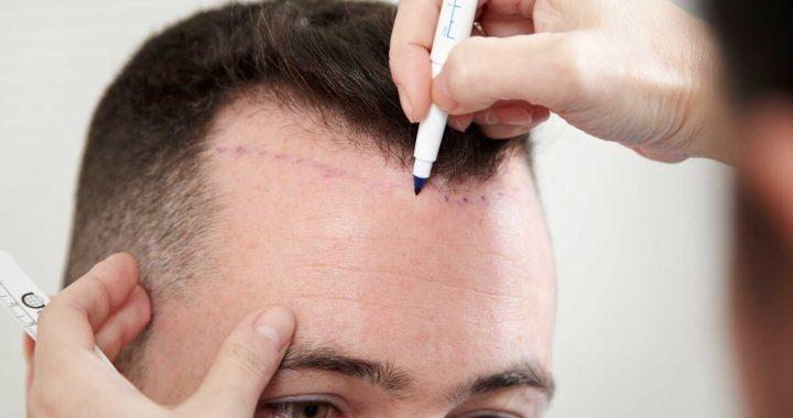 Quels sont les avantages de la greffe de cheveux en Turquie ?