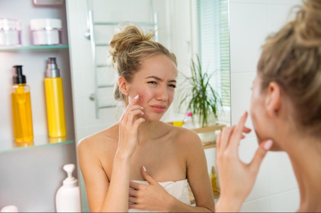 choix du savon pour les peaux allergiques