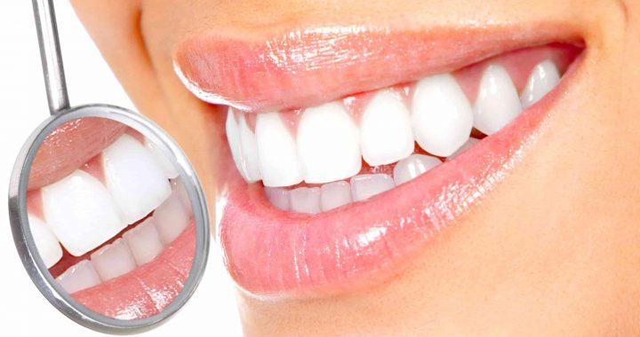 Les blanchiments dentaires qui fonctionnent vraiment