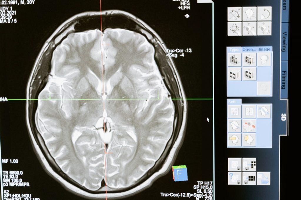 améliorer ses fonctions cérébrales