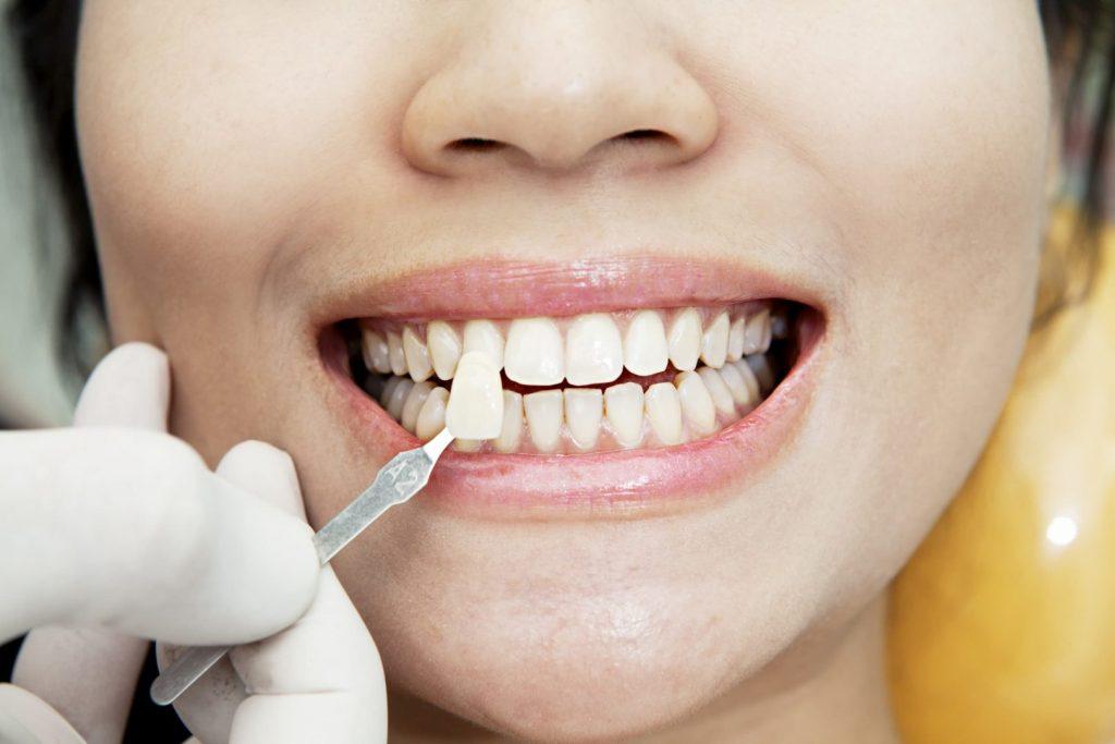 clinique dentaire à l'étranger